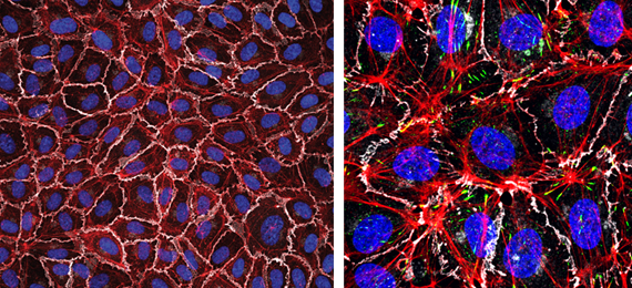 Left: Monolayer of human endothelial cells (White, VE-cadherin; red, F-actin; blue, nuclei). Right: zoomed image detailing F-actin in red, VE-cadherin in white and focal adhesions in green. Nuclei in blue.